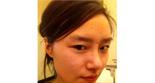 北京磨下颌角整形黄大勇院长